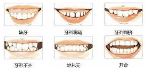 正畸拔牙有哪些影响?