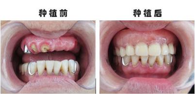 武汉冠美口腔医院黄鑫牙齿种植