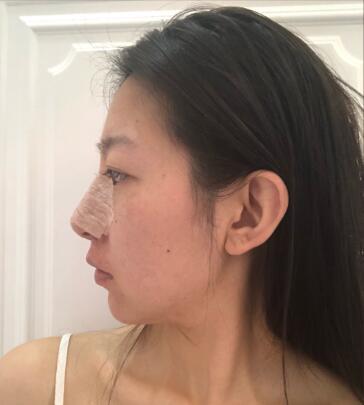 氧气宝贝的隆鼻术前照