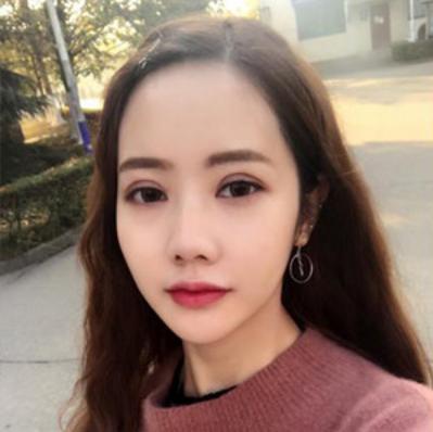上海东方丽人整形医院吴建明双眼皮案例