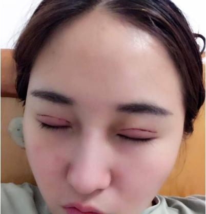 上海喜美整形医院曲妙轩双眼皮失败修复案例
