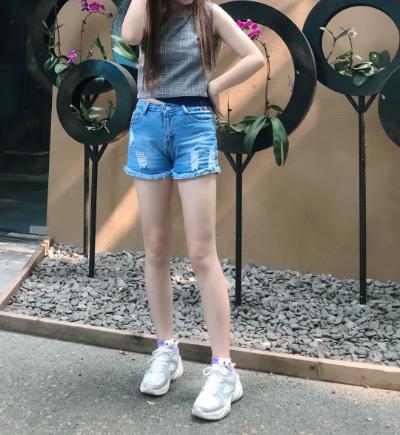 上海瑞芙臣整形医院马昌华大腿吸脂案例