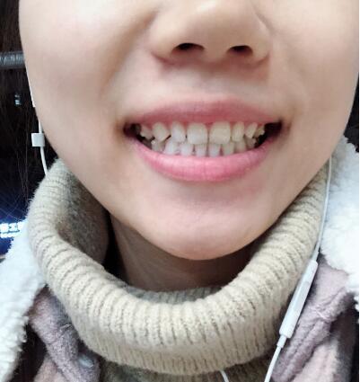 秀荣的牙齿矫正术前照