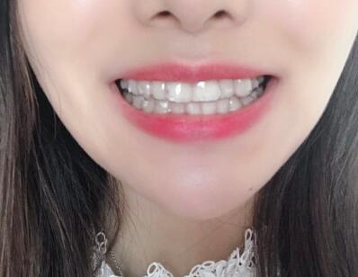 冰冰的牙齿正畸术前照