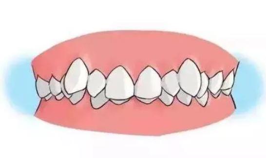 32岁牙齿矫正后悔一辈子