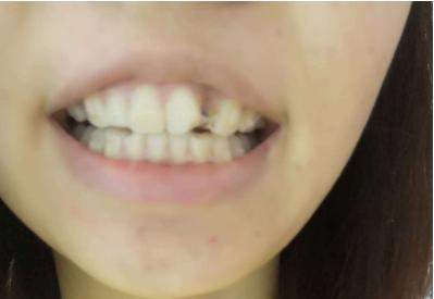 我45岁做了牙齿矫正