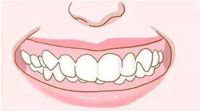 牙齿矫正脸型毁了