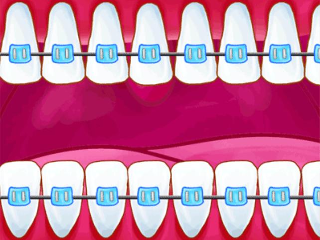 矫正牙齿的利与弊
