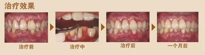 14岁整牙是我最不后悔的一个决定