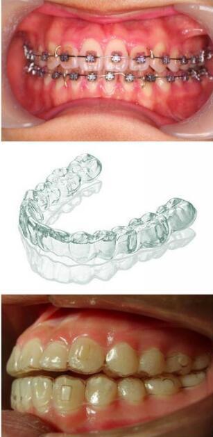 金属托槽矫正和隐型牙矫正哪种效果好