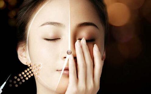 4D提升紧肤复颜术效果图