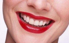 详述牙齿隐形矫正的价格及影响因素