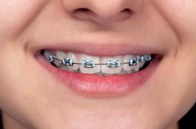 28岁没必要矫正牙齿了