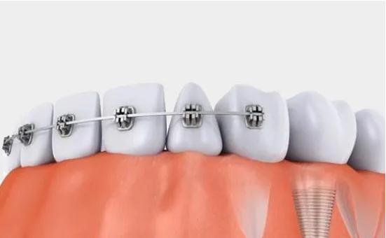 牙齿正畸价格分享