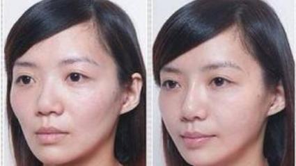 如何预防牙套脸