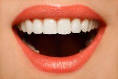 上海牙齿矫正#做牙齿矫正的费用大概是多少?