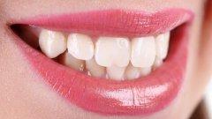 牙齿正畸的原理