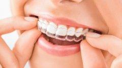 在成都做隐形牙齿矫正多少钱