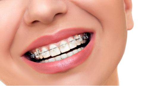 牙齿矫正多大年龄做合适