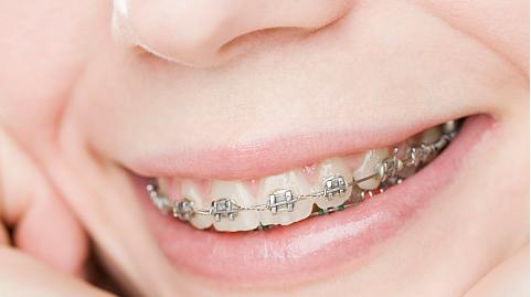 你知道吗?牙齿正畸价格与许多因素有关
