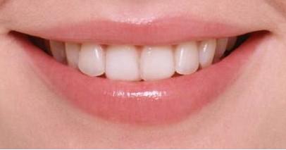 戴牙套矫正牙齿要多少钱