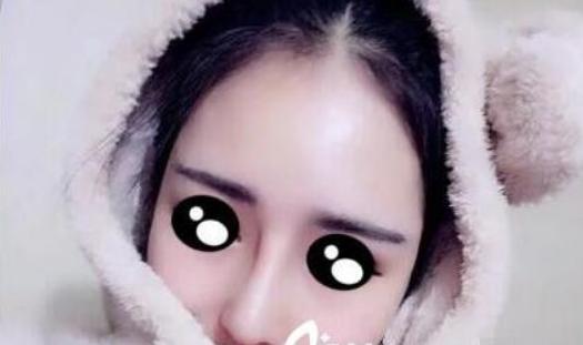 上海华美谢卫国隆鼻后第二十一天照片