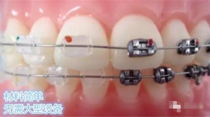 牙齿矫正如何选择医院