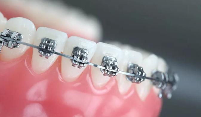 牙齿能不矫正最好不要矫正