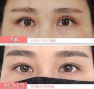 中国眼部修复第一人国内顶级修复双眼皮失败的图片案例
