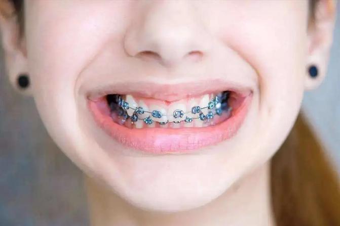 整牙要多少钱
