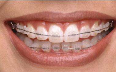 听说牙齿矫正有后遗症?牙齿矫正的后遗症是啥?