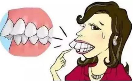 矫正地包天到哪里好?上海牙齿矫正