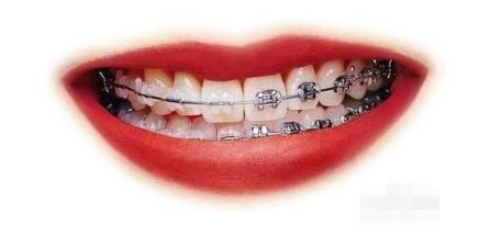 牙齿矫正几个月见效果