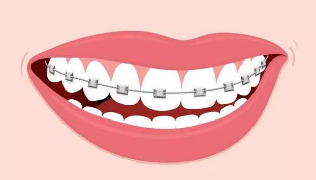 牙齿矫正需要多久