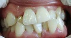 大连牙齿矫正#牙齿不齐隐形矫正需要多久
