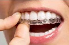 大连齿医生科普|做牙齿矫正的详细过程