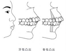 上海九院韦敏科普丨为什么做正颌手术前后要正畸?