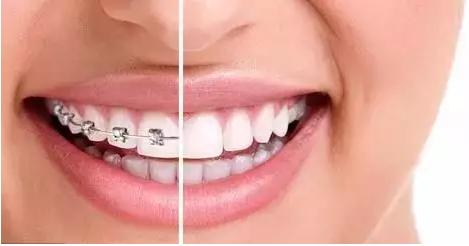 过了30岁还可以做牙齿矫正吗