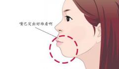 门牙突出可自我纠正吗?建议通过牙齿矫正来改善这一问题