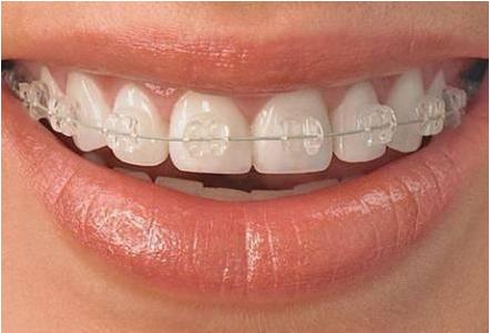 牙齿不齐需要做矫正吗?牙齿不齐有什么危害?