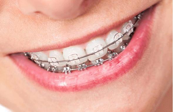 在上海牙齿整形需要多少钱