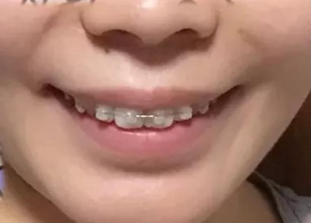 戴牙套多少天能看出变化