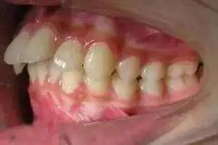 网上买的牙套矫正成功了吗