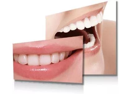 30岁还可以矫正牙齿需要几年