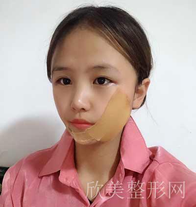 安莎贝拉-张蕾做吸脂瘦脸术后15天照