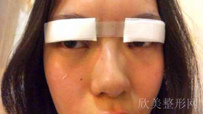 安莎贝拉做双眼皮拆线后图片