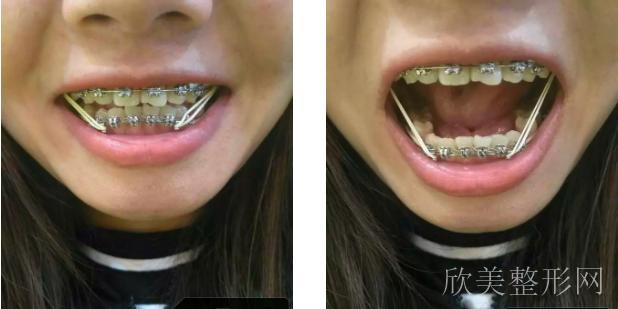 拔了四颗牙,期待脸型能有一点变化