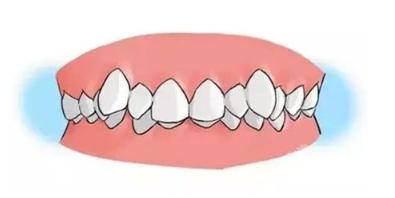 牙齿矫正去正规医院