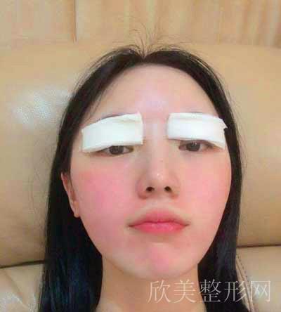 安莎-全切双眼皮拆线后图片