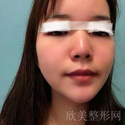 安莎-张蕾做双眼皮术后30天图片